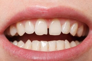 Diastema between the upper incisors in need of frenectomy.