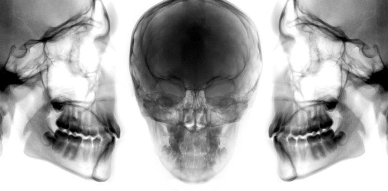 x rays of mandible maxilla and skull