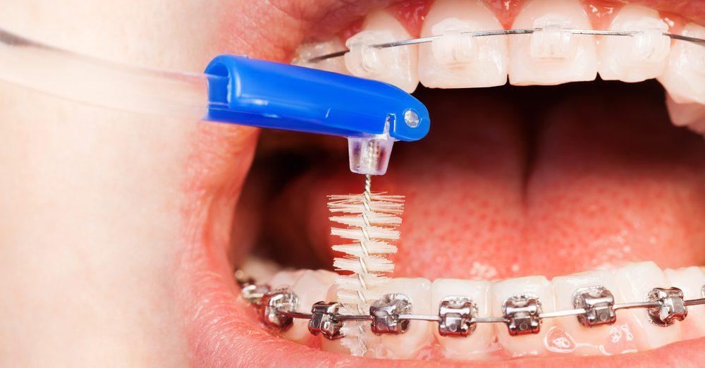Orthodontics FAQs - Dr. Mick
