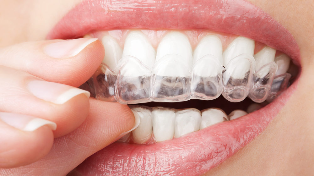 invisalign clear aligner on top teeth
